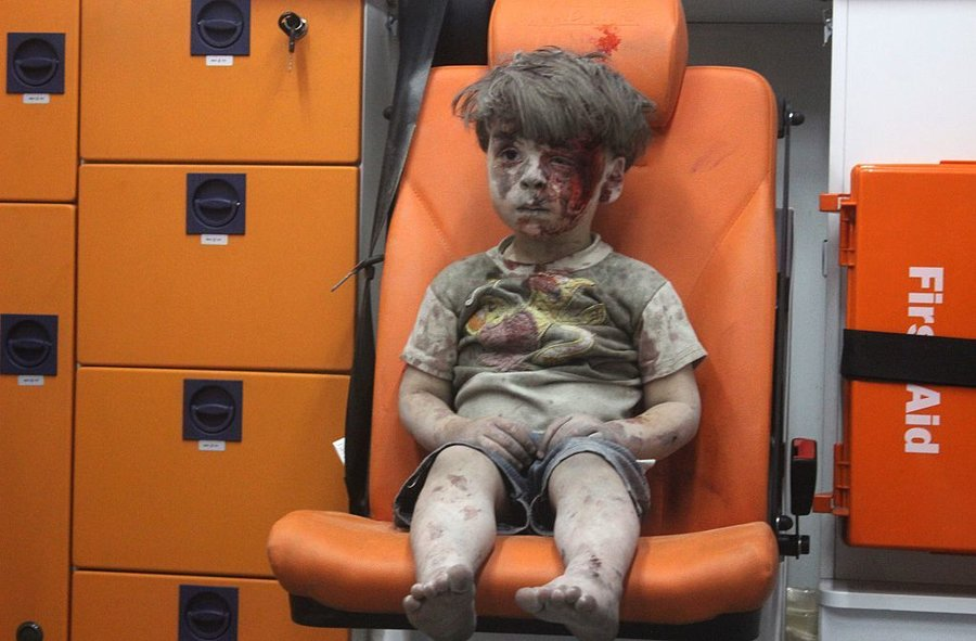 Bloodied Syrian Boy